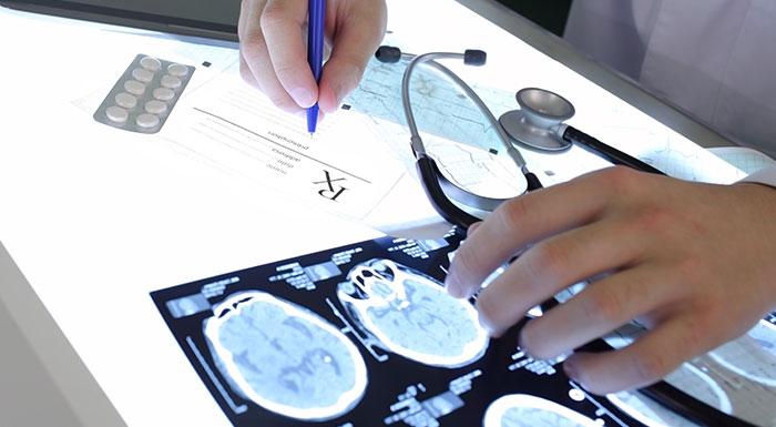 Doctor analyzes brain scan of brain injury victim